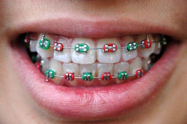Co trzeba wiedzieć o aparatach ortodontycznych?
